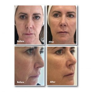 The effects of 'minimally invasive' injectable skin boosters